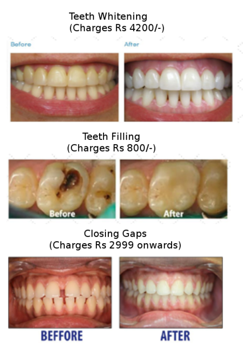 The wedding gift to yourself charming smiles dental clinic teeth whitening filling and closing gaps solutioingenieria Choice Image